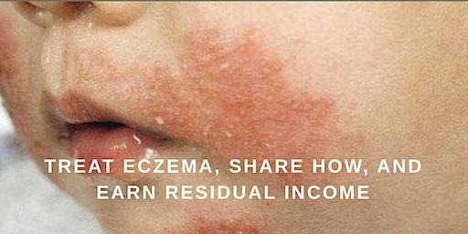 Learn, Share, Earn:  Treat Eczema, Share How, and Earn Residual Income!