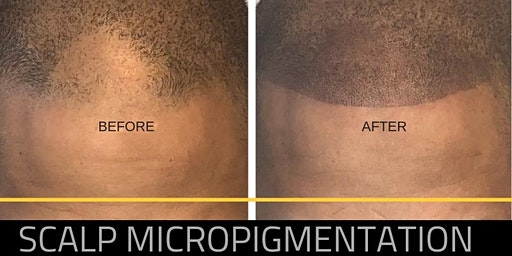 SMP (Scalp Micropigmentation) and Hairline Restoration (3 Day Training)- DALLAS, TX