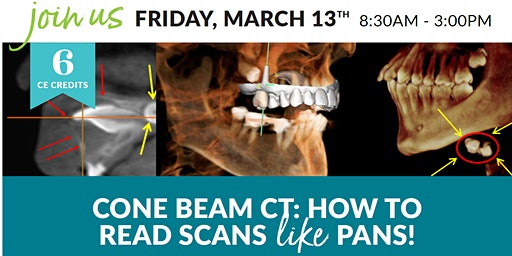 Cone Beams: How To Read Scans Like Pans