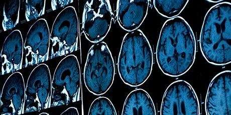 Healthy Living for Your Brain and Body: Tips from the Latest Research tickets