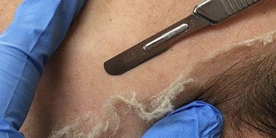 Dermaplaning with Chemical Peels