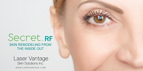 Open House - Launch of Secret RF Microneedling tickets