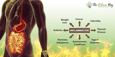 Exemplify Health's Approach to Inflammation 3.31.20 tickets