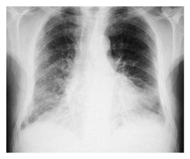 Management of Pulmonary Fibrosis and NIV tickets