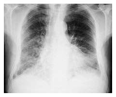 Management of Pulmonary Fibrosis and NIV