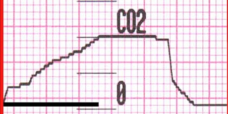 Slap the Cap: The Comprehensive Capnography Course tickets