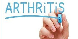 Arthritis 101