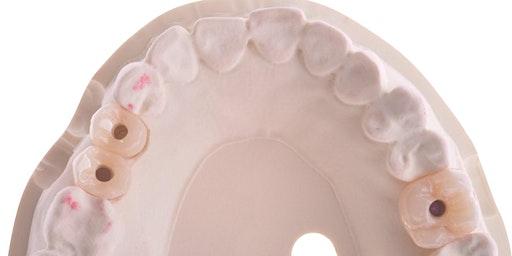 Successful Implant Esthetics in Everyday Practice