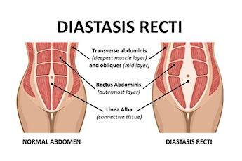 Healing Your Core- Diastasis Recti Workshop tickets