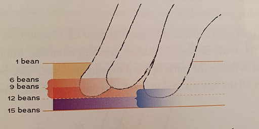 Ann Cecil-Sterman Study Group VIC Dynamic Pulses