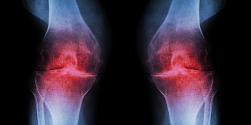 Free Chronic Knee Pain Seminar