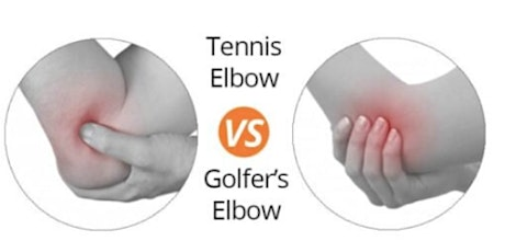 Don't Let Your Elbow Pain Stop You This Season! tickets