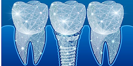 Digital Dental Implant Workflow tickets