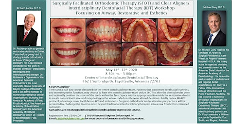 Surgically Facilitated Orthodontic Therapy (SFOT) and Clear Aligners