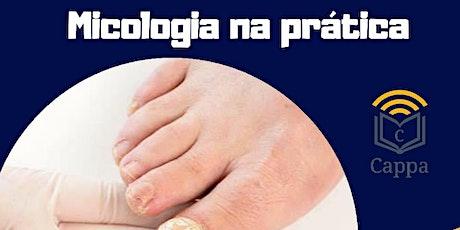 MICOLOGIA NA PRATICA - FORTALEZA-CE- JUNHO 2020 bilhetes