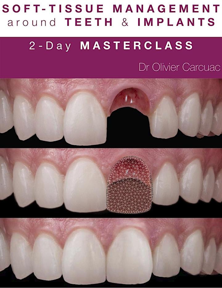 Mucogingival Surgery around Teeth & Implants image