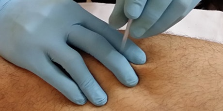 Foundations I: Trigger Point Dry Needling - Chicago, IL - April 4-5, 2020 tickets