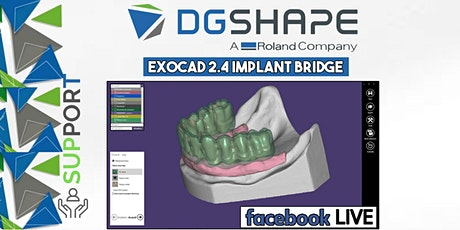 DGSHAPE: Exocad 2.4 Implant Bridge_Facebook LIVE  biglietti
