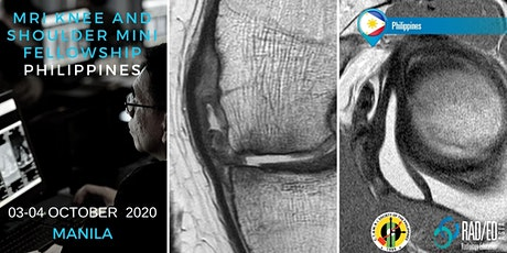 Radiology Conference MANILA PHILIPPINES MRI Knee and Shoulder Mini Fellowship and Workstation Workshop 03-04 October 2020: Radiology Education Asia tickets