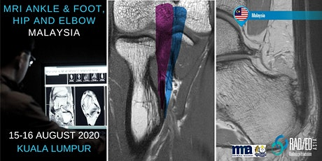Radiology Conference Kuala Lumpur, MALAYSIA MRI Ankle & Foot, Hip and Elbow Mini Fellowship and Workstation Workshop  Radiology Education Asia 15-16 August 2020 tickets