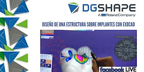 Diseño de una estructura sobre implantes con Exocad entradas