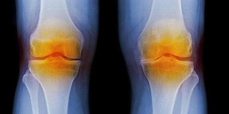 Live Webinar: Advanced Treatment Options For Osteoarthritis Knee Pain tickets