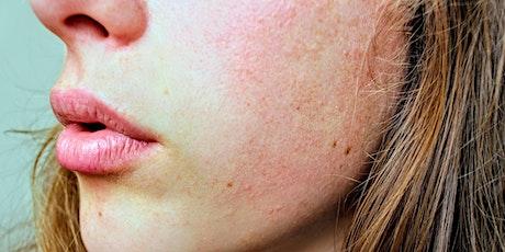 Online Skin Health Class - By Dr. Elsa Jungman tickets