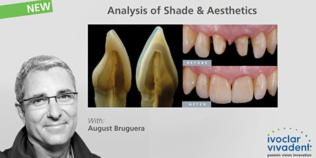 August Bruguera - Analysis of Shade & Aesthetics tickets