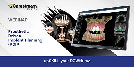 Prosthetic Driven Implant Planning (PDIP) tickets
